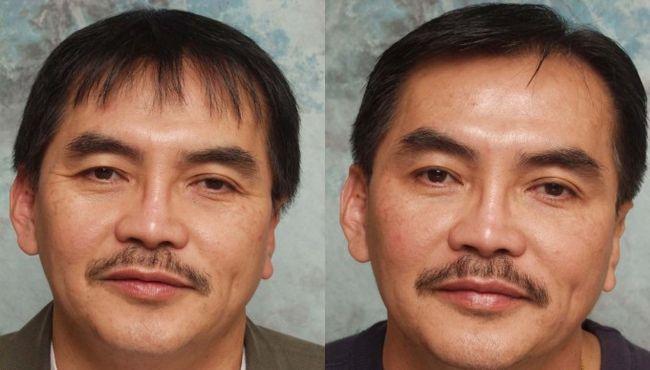Ботокс особи фото чоловіків до і після