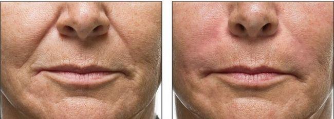 Ботокс: носогубні складки фото до і після