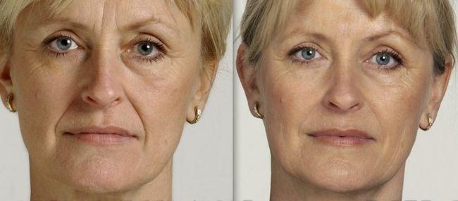 Ботокс в лоб фото до і після
