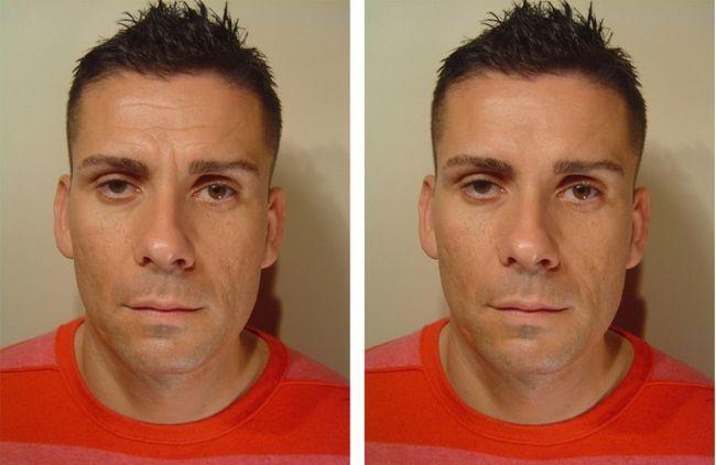 Ін`єкції ботокса фото чоловіка до і після