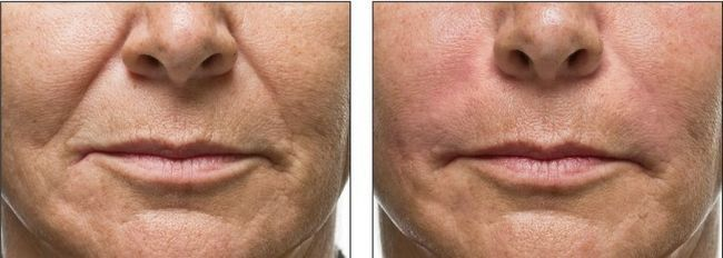 Результати ботокса фото до і після