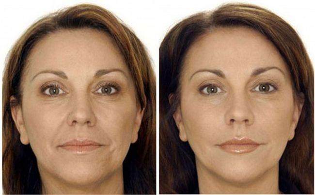 Ботокс гусячі лапки фото до і після