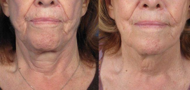 Уколи ботокса фото до і після процедури