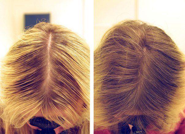 Маска для волосся від випадіння: яка найкраща і ефективна, відгуки та фото