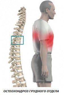 Вправи для грудного відділу хребта, що допомагають при остеохондрозі і сколіозі